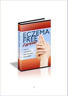 Eczema Free Forever PDF EBook Free Download