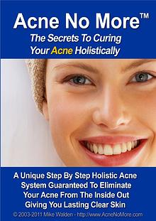 Acne No More PDF, eBook Mike Walden Free Download